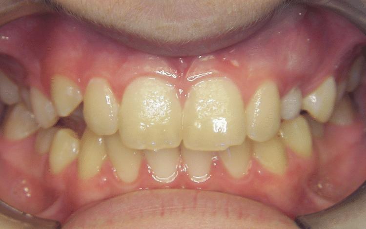 Joosse Family Orthodontics Before Picture
