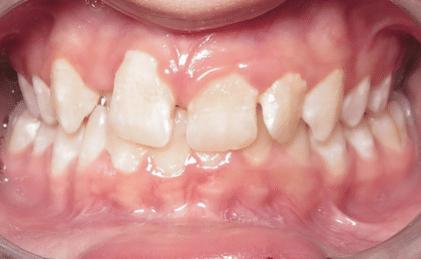 Kristina Before Williamsburg Orthodontist