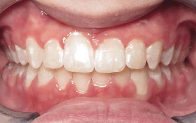 Kristina After Joosse Family Orthodontics Williamsburg VA