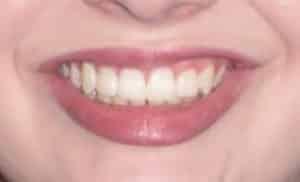 after orthodontic treatment joosse family orthodontics