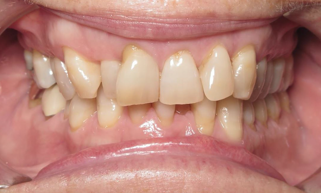 Invisalign Orthodontist in Williamsburg VA