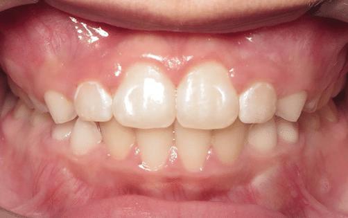 Phase 1 orthodontic treatment in Williamsburg VA