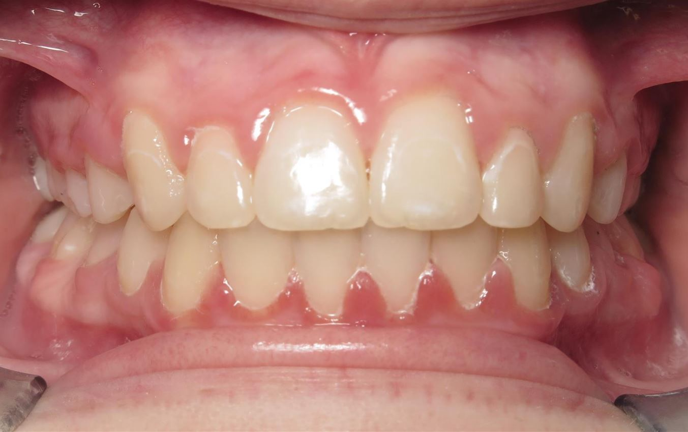 after JFO orthodontic treatment