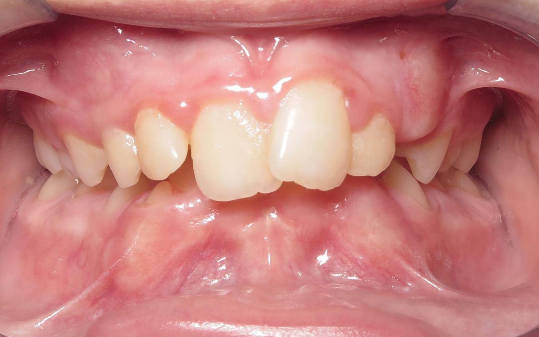 before JFO orthodontic treatment