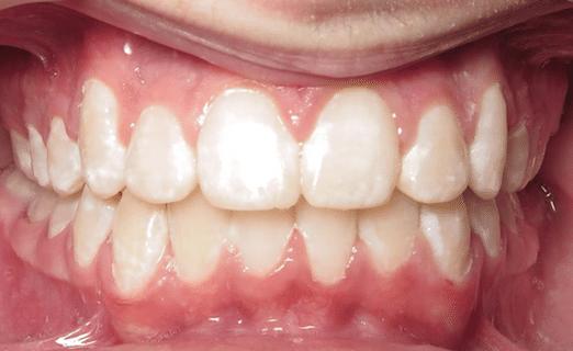 braces treatment in Williamsburg, VA